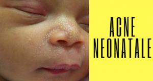 acne neonatale