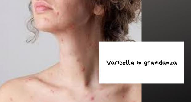 varicella in gravidanza